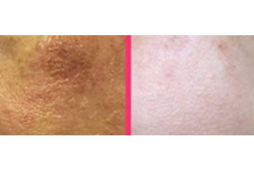 Touch Skin 21 – Antes y después
